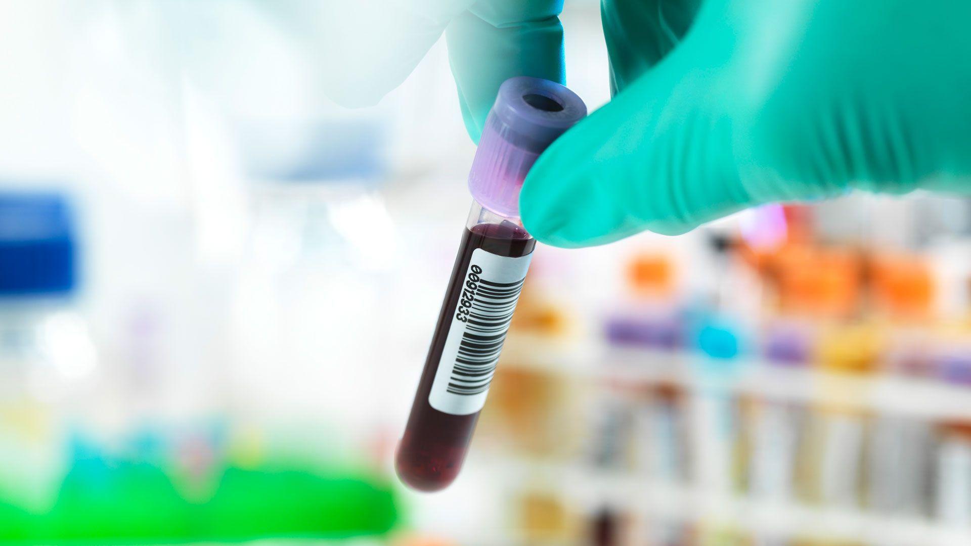Der neue Antikörpertest: Kann er die Pandemie stoppen?
